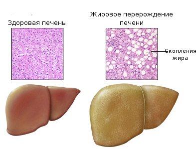 гепатоз жировой